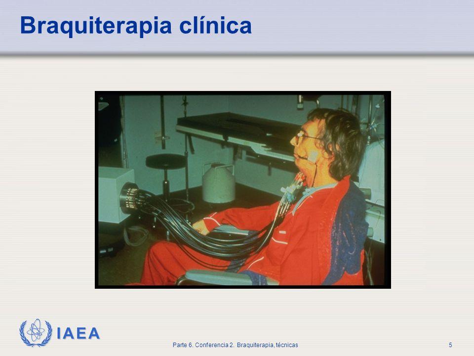 Braquiterapia clínica