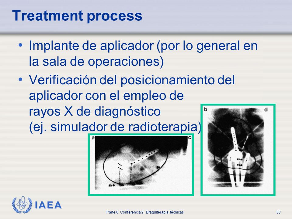 Treatment process Implante de aplicador (por lo general en la sala de operaciones)