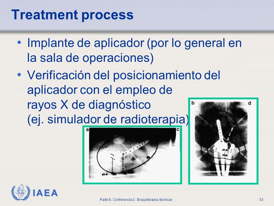 Treatment processImplante de aplicador (por lo general en la sala de operaciones)