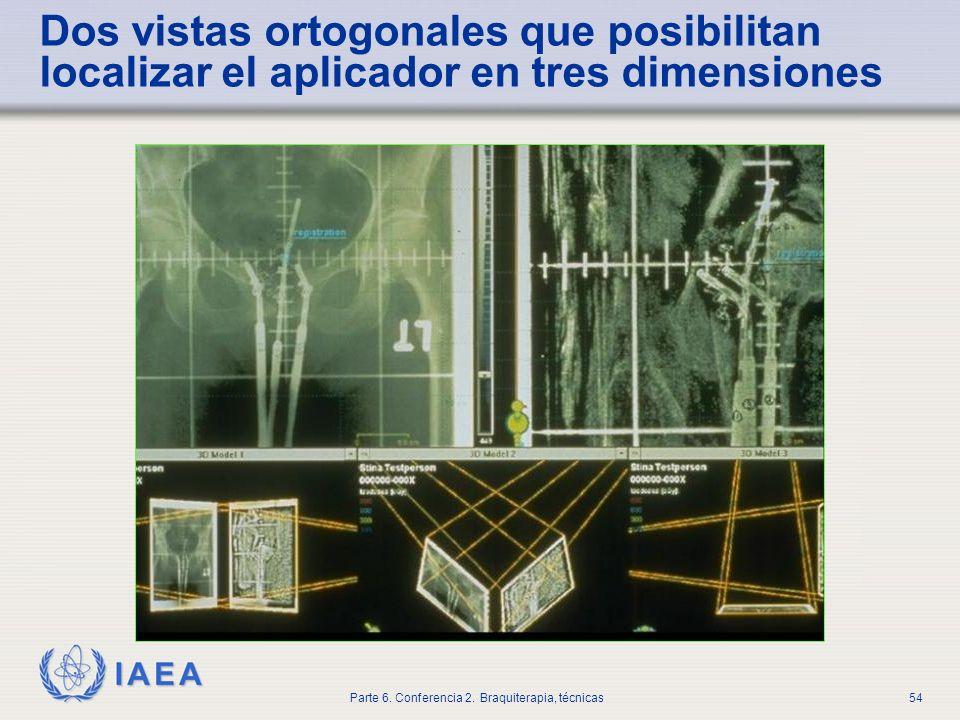 Dos vistas ortogonales que posibilitan localizar el aplicador en tres dimensiones