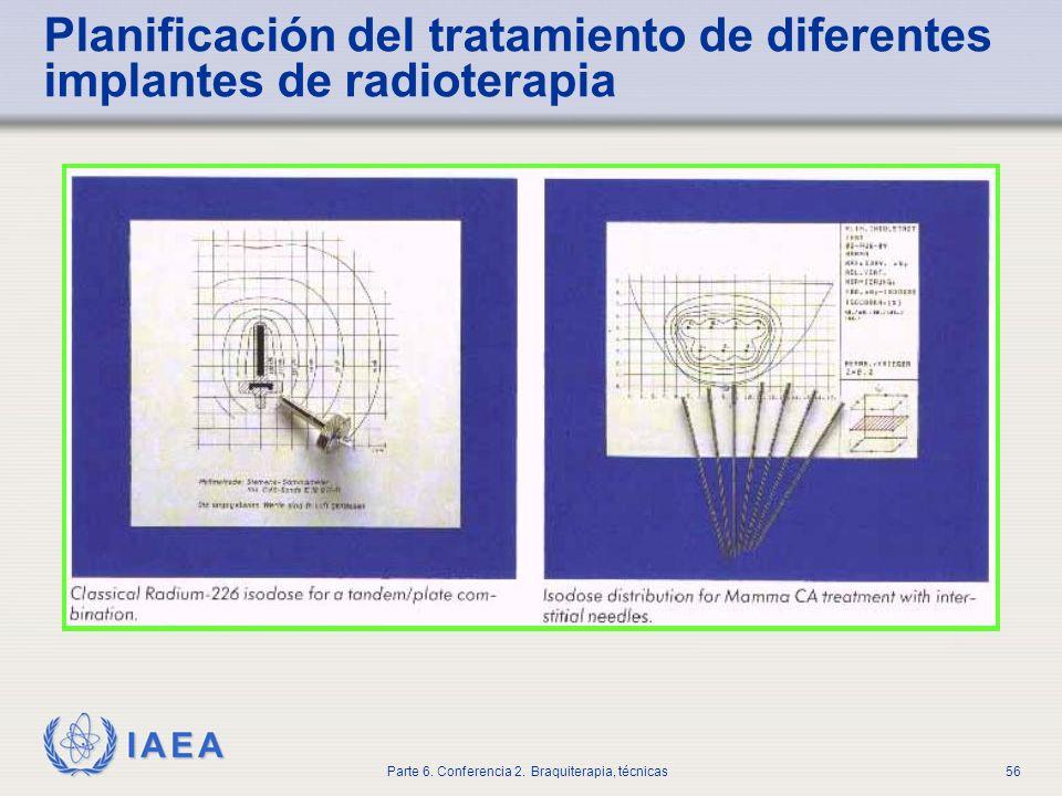 Planificación del tratamiento de diferentes implantes de radioterapia