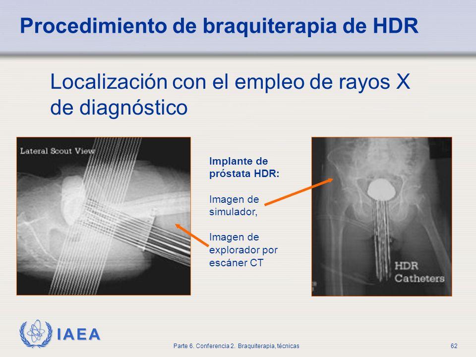 Procedimiento de braquiterapia de HDR