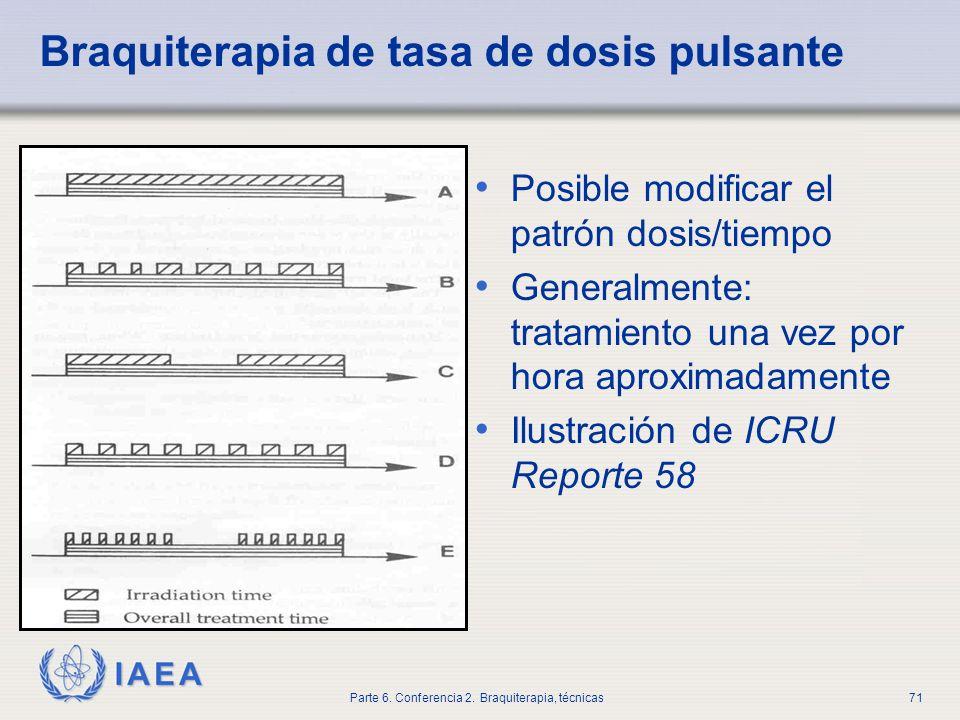 Braquiterapia de tasa de dosis pulsante
