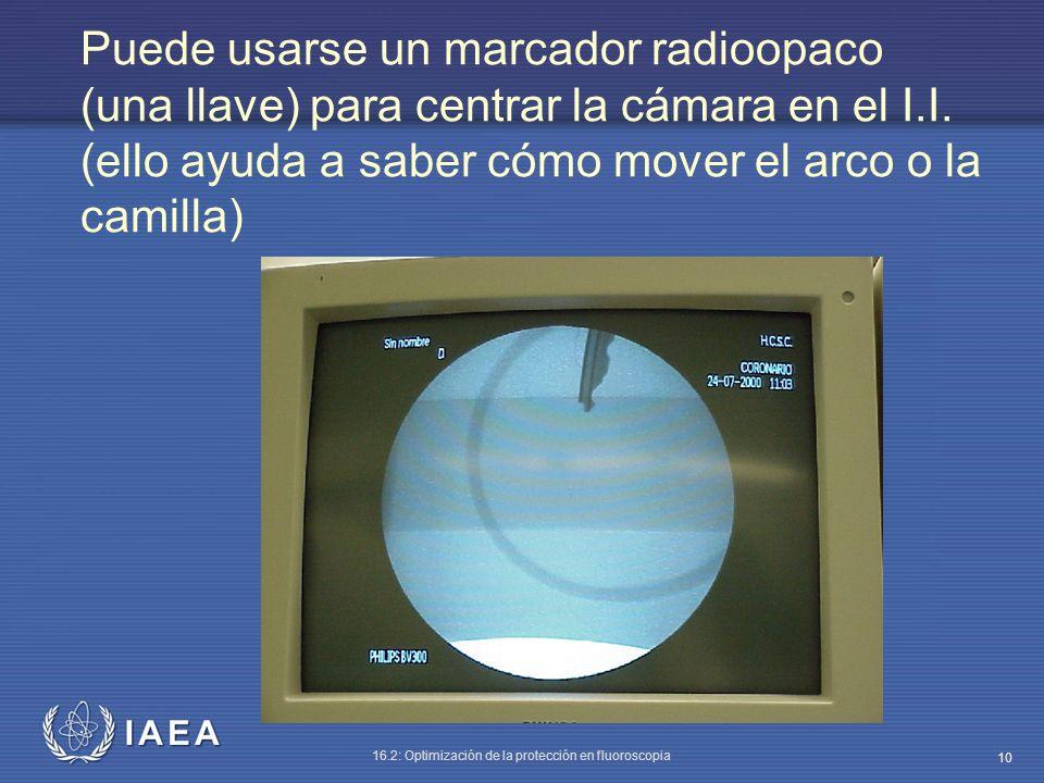 Puede usarse un marcador radioopaco (una llave) para centrar la cámara en el I.I.