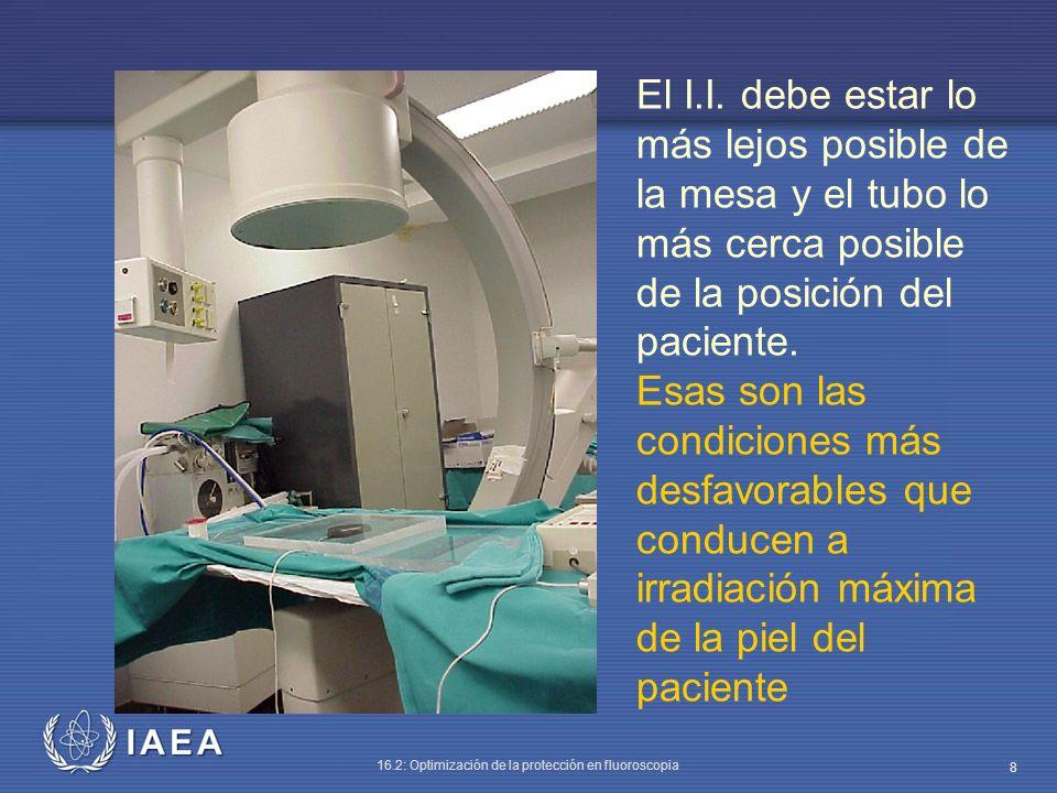El I.I. debe estar lo más lejos posible de la mesa y el tubo lo más cerca posible de la posición del paciente.