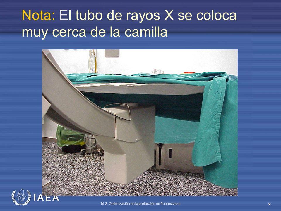 Nota: El tubo de rayos X se coloca muy cerca de la camilla