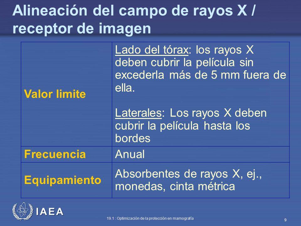 Alineación del campo de rayos X / receptor de imagen