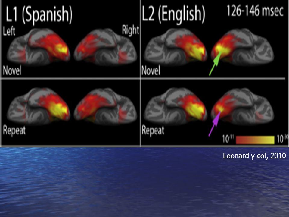 Fig. 1. Group dSPM images of the mean activity during early visual word encoding (¡«136 ms post-stimulus onset) for 11 subjects. Spanish (L1) showed strongly left lateralized