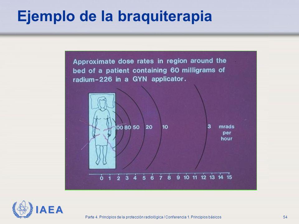 Ejemplo de la braquiterapia