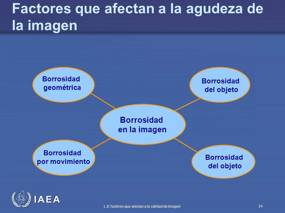 Factores que afectan a la agudeza de la imagen