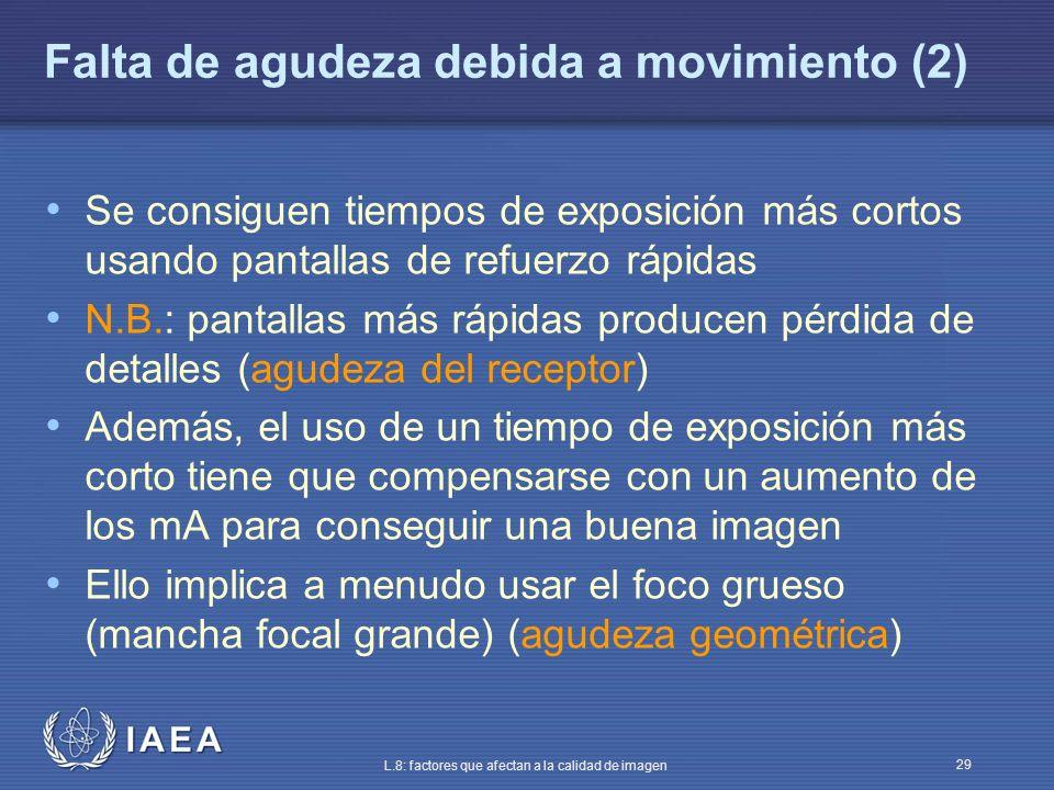 Falta de agudeza debida a movimiento (2)