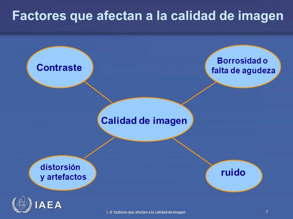 Factores que afectan a la calidad de imagen