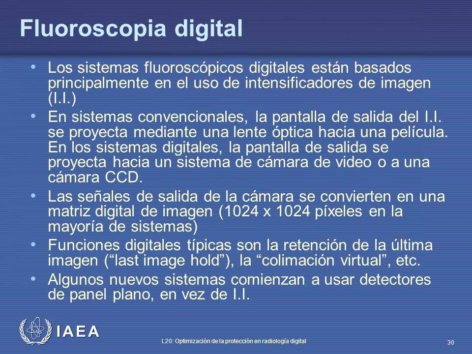 Fluoroscopia digital Los sistemas fluoroscópicos digitales están basados principalmente en el uso de intensificadores de imagen (I.I.)