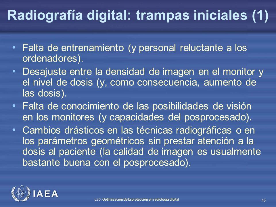 Radiografía digital: trampas iniciales (1)