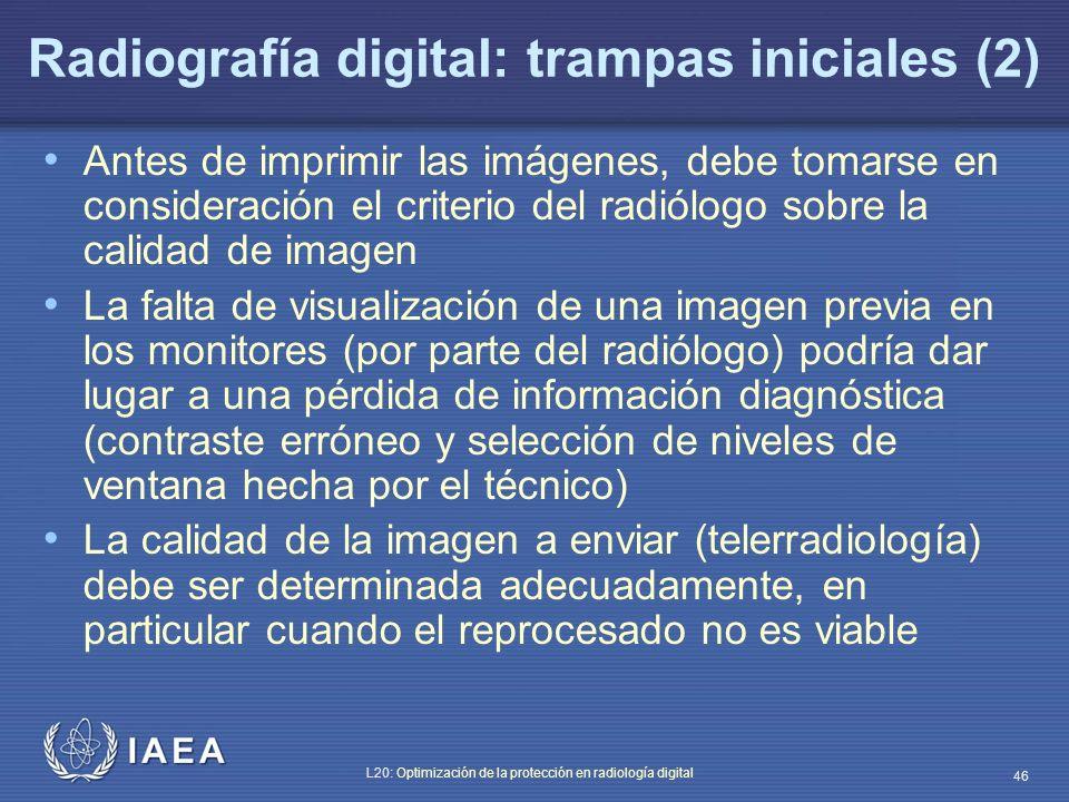 Radiografía digital: trampas iniciales (2)