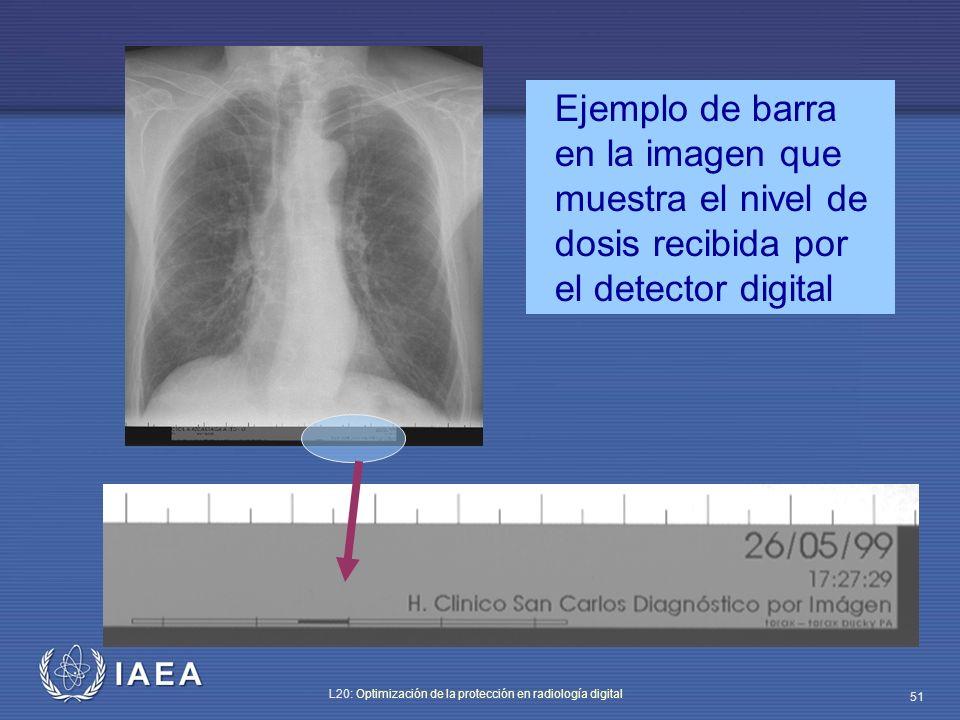 Ejemplo de barra en la imagen que muestra el nivel de dosis recibida por el detector digital