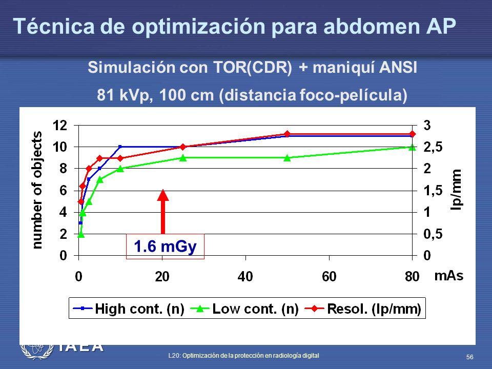 Técnica de optimización para abdomen AP