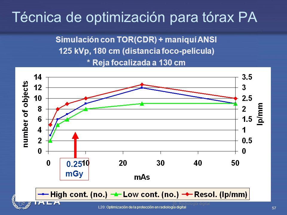 Técnica de optimización para tórax PA