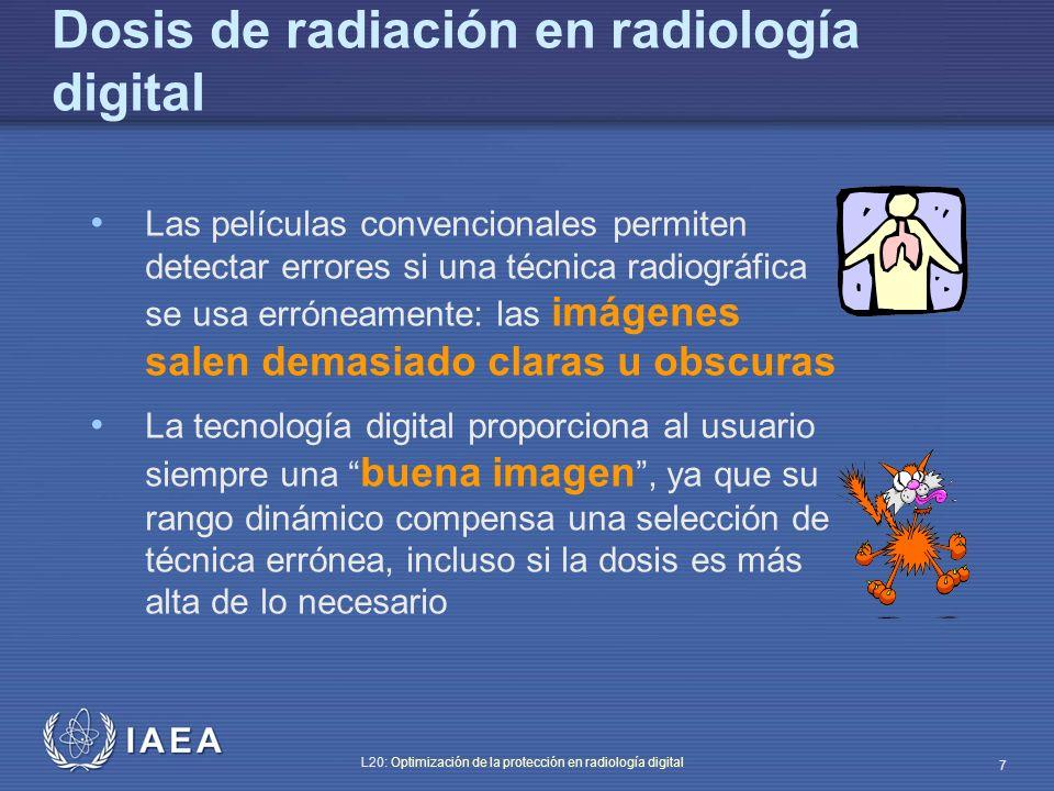 Dosis de radiación en radiología digital