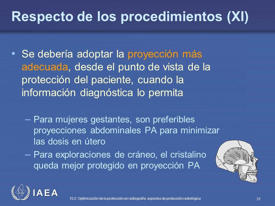Respecto de los procedimientos (XI)