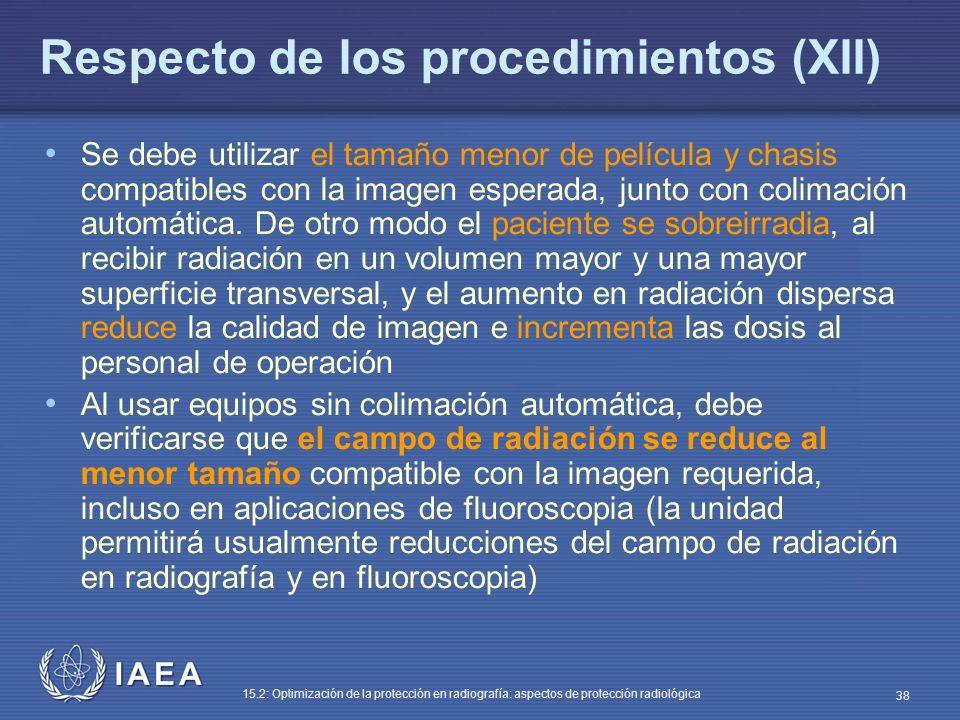 Respecto de los procedimientos (XII)