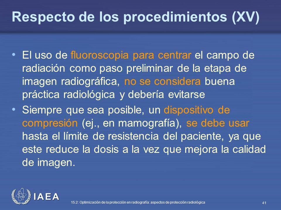 Respecto de los procedimientos (XV)