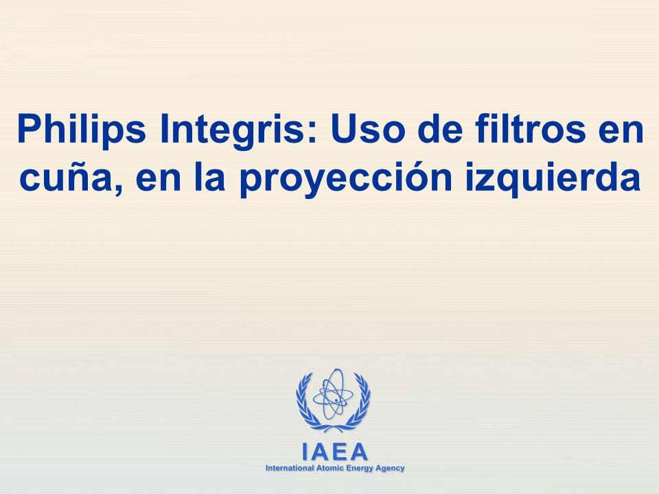 Philips Integris: Uso de filtros en cuña, en la proyección izquierda