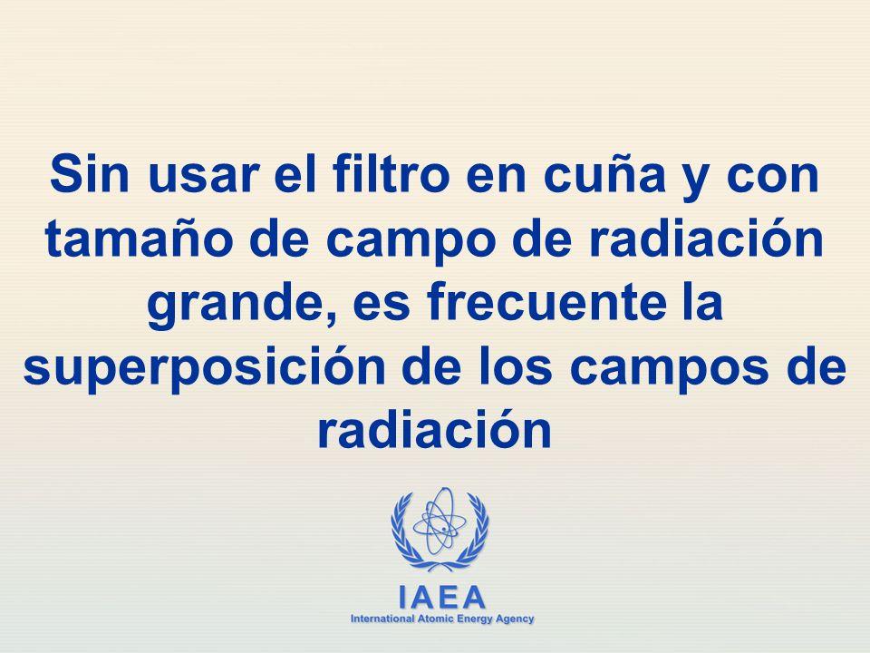 Sin usar el filtro en cuña y con tamaño de campo de radiación grande, es frecuente la superposición de los campos de radiación