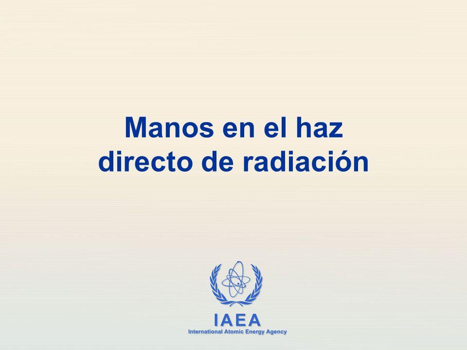 Manos en el haz directo de radiación