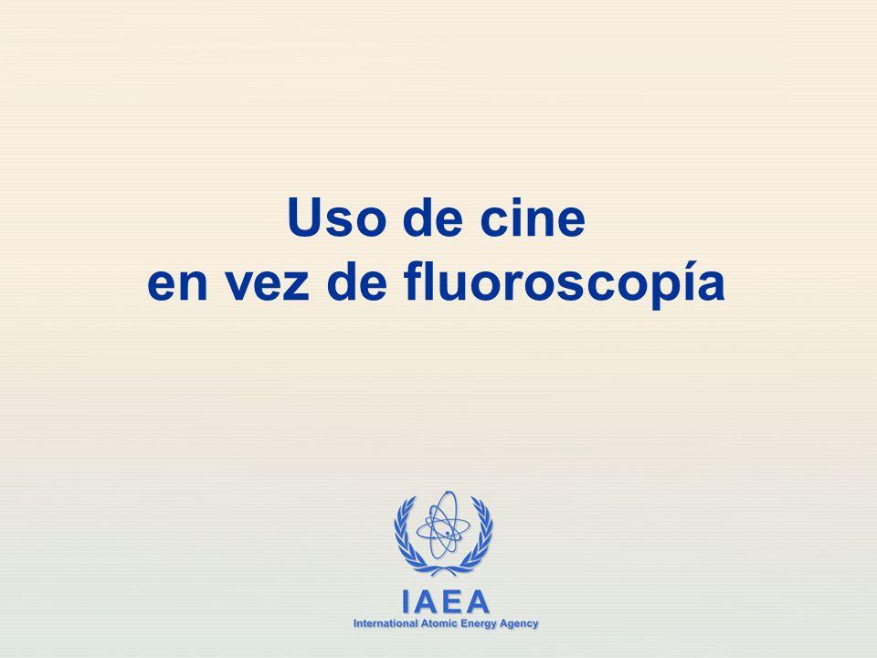 Uso de cine en vez de fluoroscopía