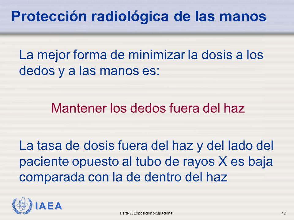 Protección radiológica de las manos