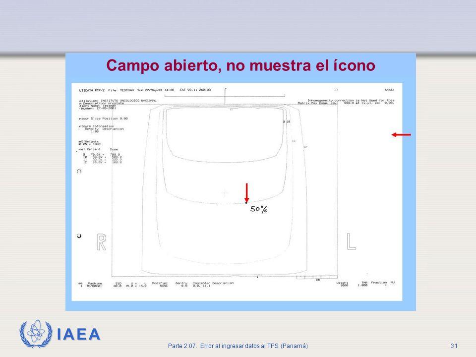 Campo abierto, no muestra el ícono