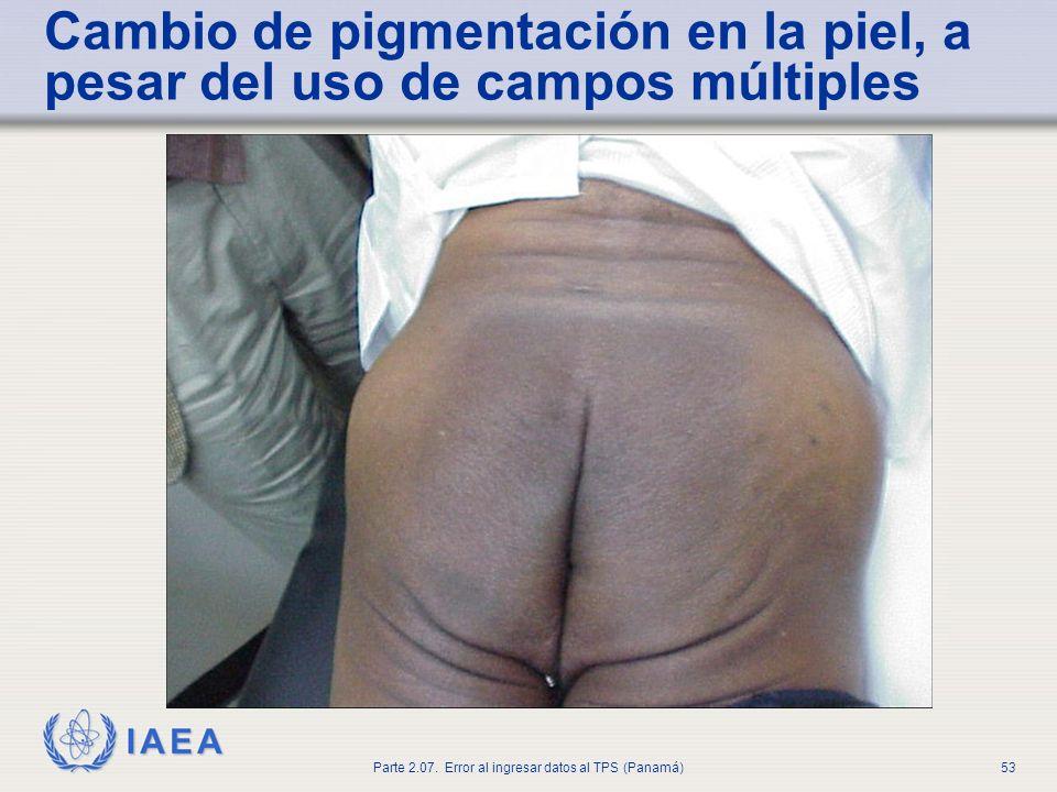 Cambio de pigmentación en la piel, a pesar del uso de campos múltiples