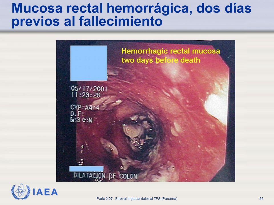 Mucosa rectal hemorrágica, dos días previos al fallecimiento