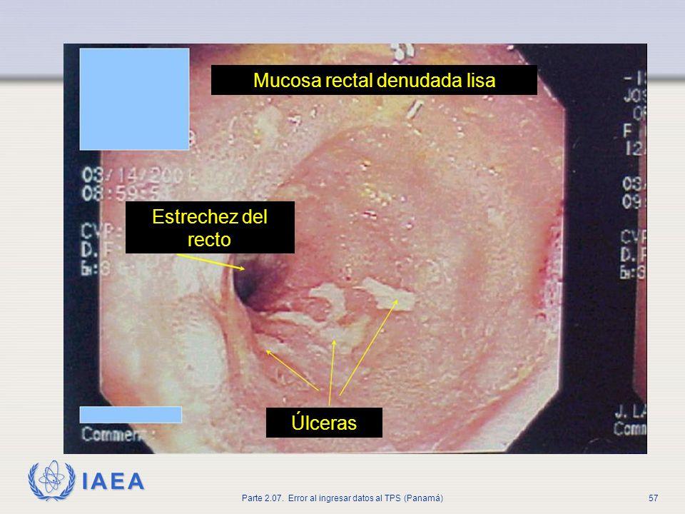 Mucosa rectal denudada lisa
