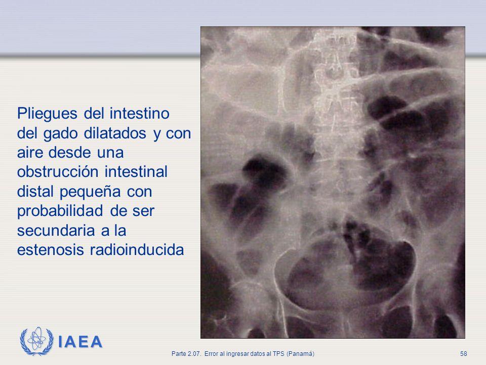 Pliegues del intestino del gado dilatados y con aire desde una obstrucción intestinal distal pequeña con probabilidad de ser secundaria a la estenosis radioinducida