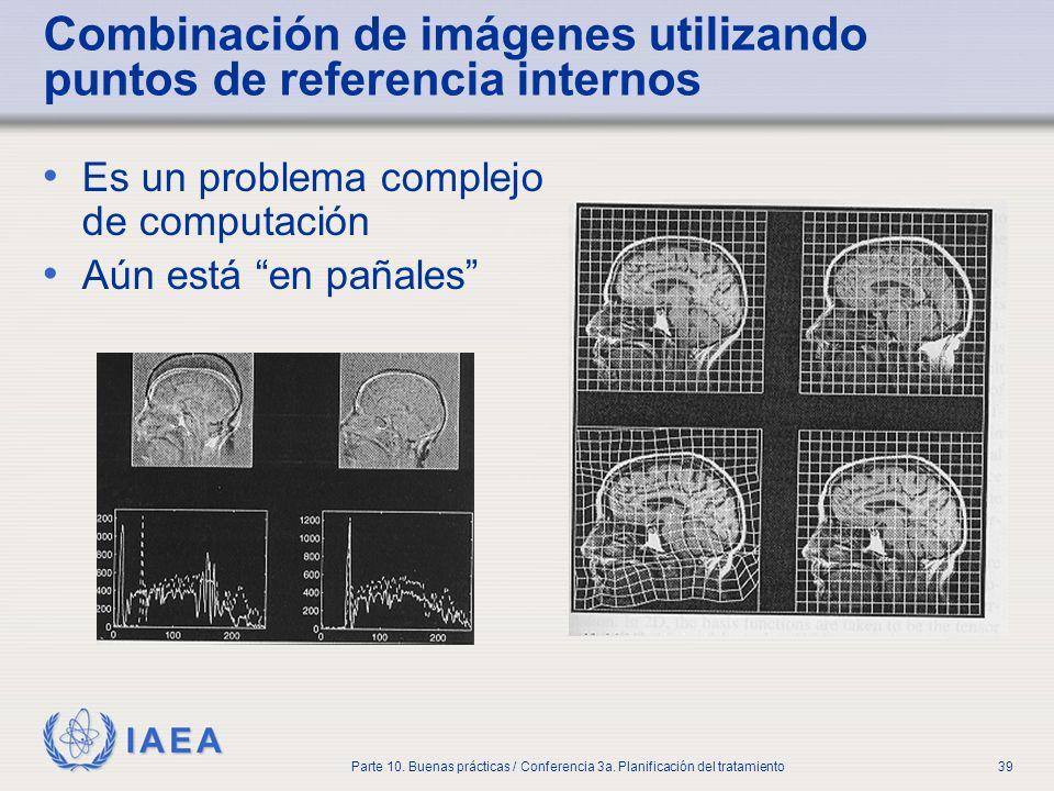 Combinación de imágenes utilizando puntos de referencia internos
