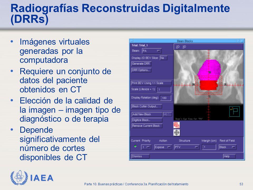 Radiografías Reconstruidas Digitalmente (DRRs)