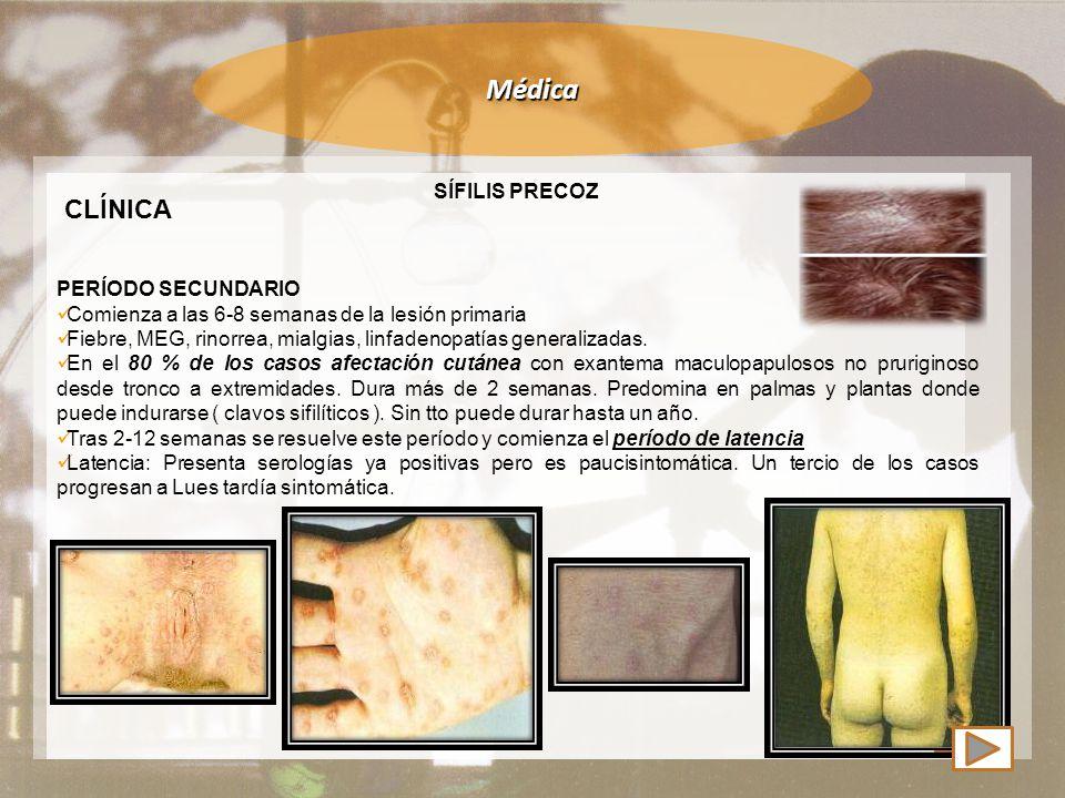 Médica CLÍNICA SÍFILIS PRECOZ PERÍODO SECUNDARIO