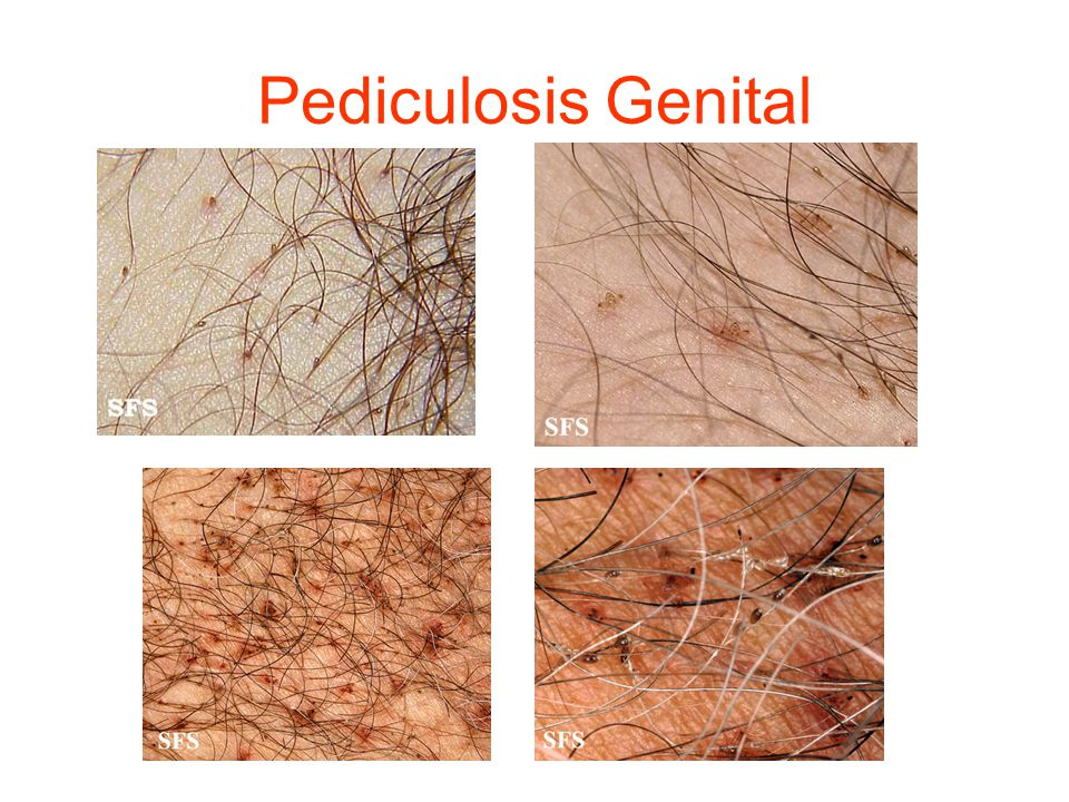Pediculosis Genital