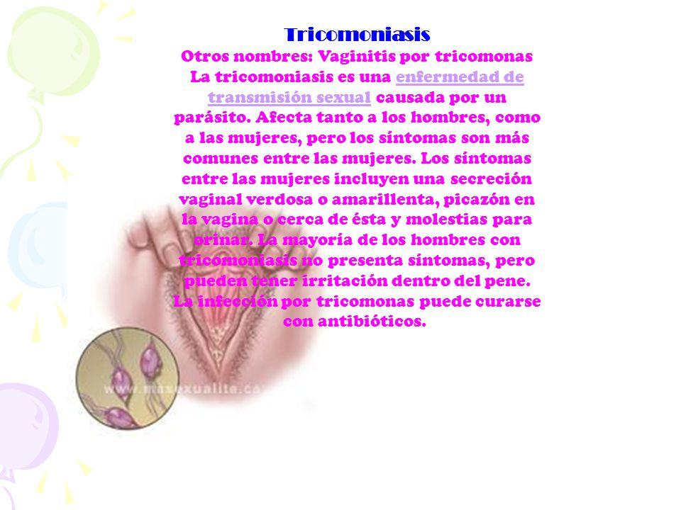 Tricomoniasis Otros nombres: Vaginitis por tricomonas