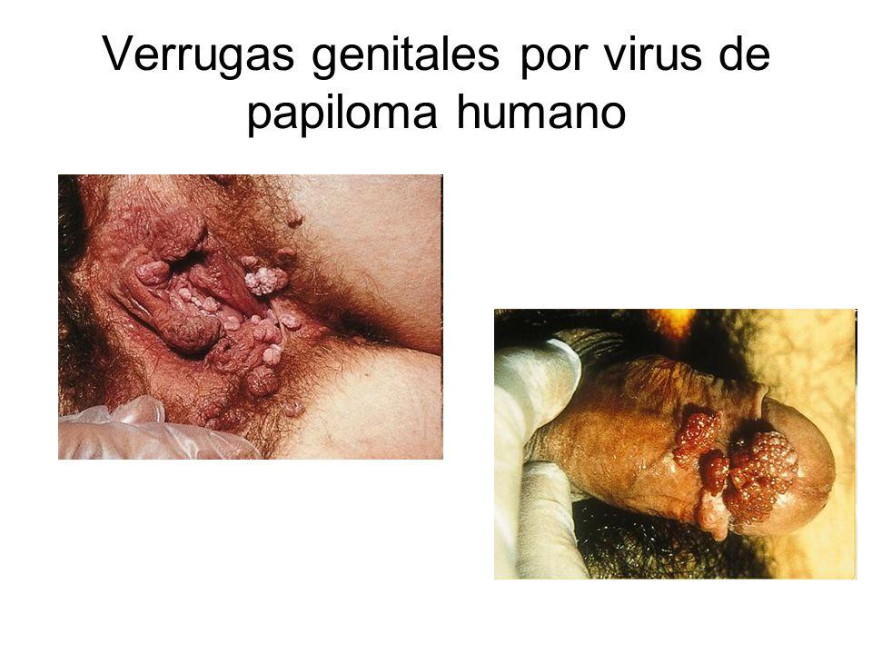 Verrugas genitales por virus de papiloma humano