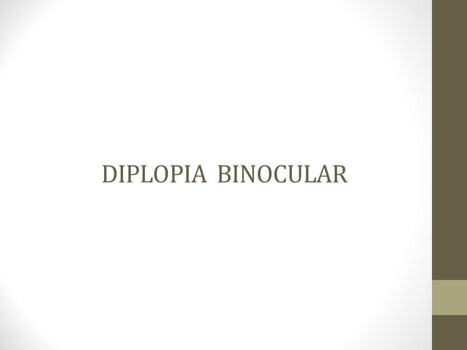 DIPLOPIA BINOCULAR