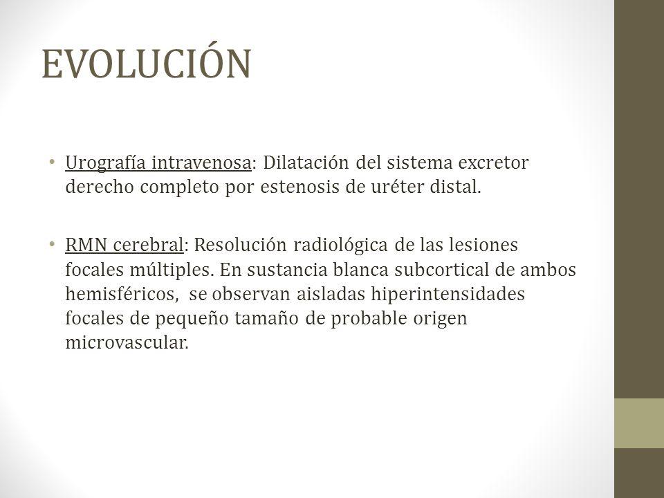 EVOLUCIÓN Urografía intravenosa: Dilatación del sistema excretor derecho completo por estenosis de uréter distal.