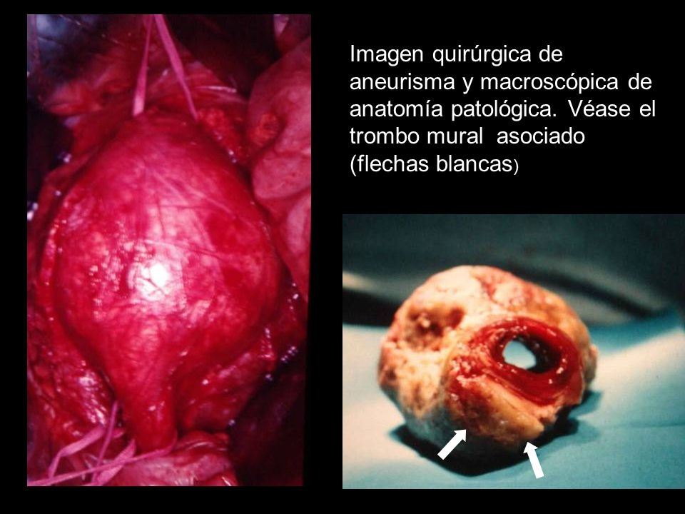 Imagen quirúrgica de aneurisma y macroscópica de anatomía patológica