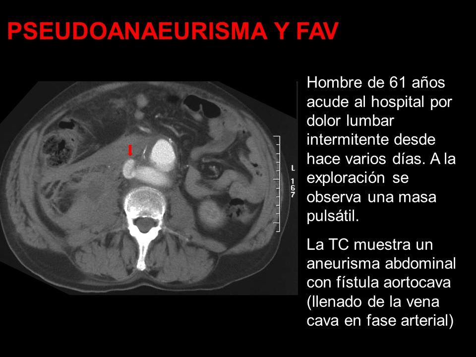 PSEUDOANAEURISMA Y FAV
