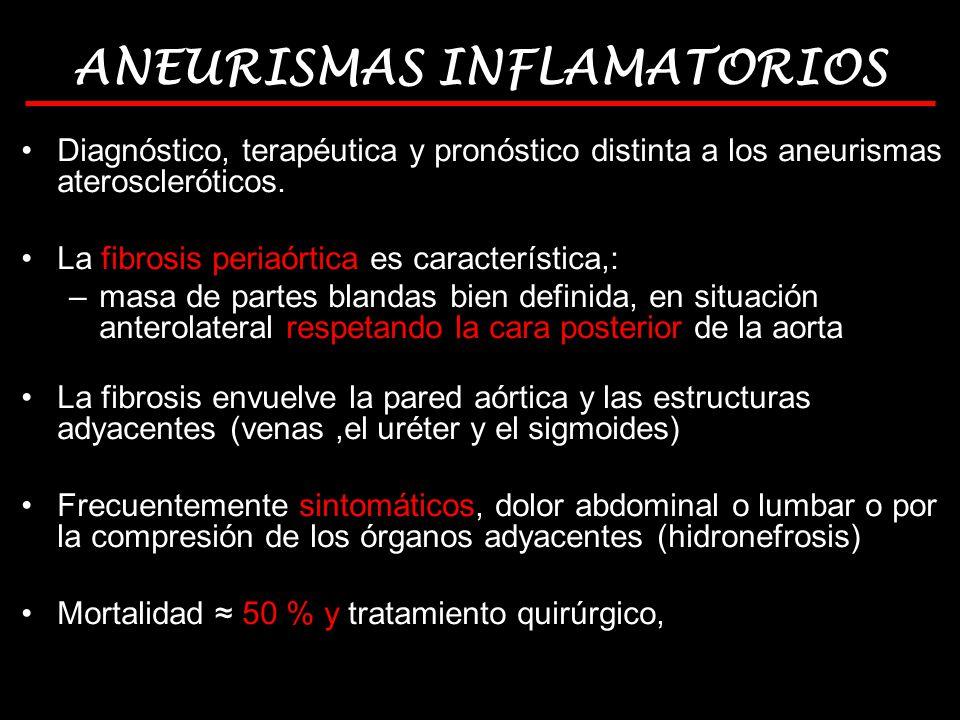 ANEURISMAS INFLAMATORIOS