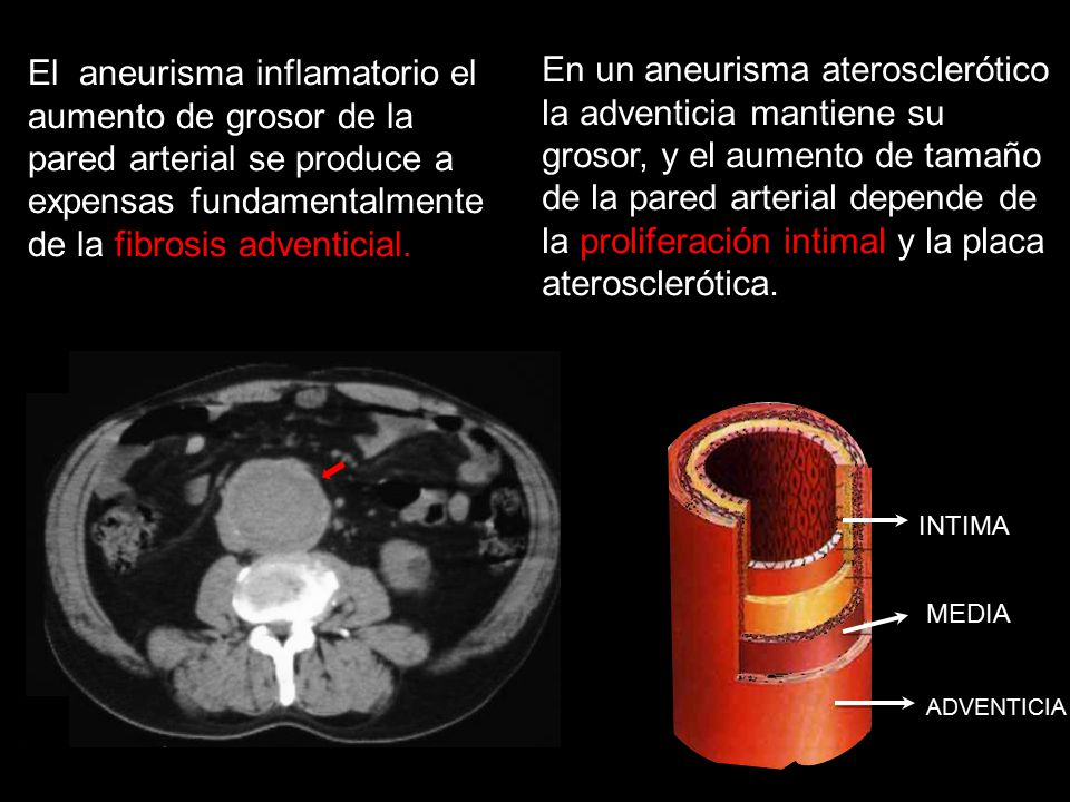 El aneurisma inflamatorio el aumento de grosor de la pared arterial se produce a expensas fundamentalmente de la fibrosis adventicial.