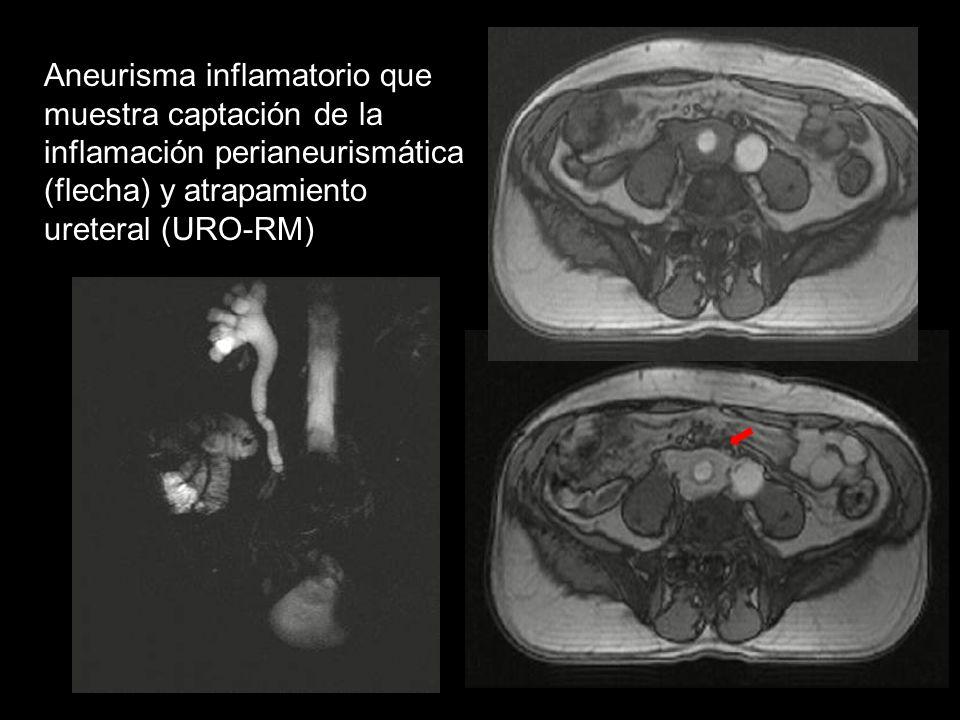 Aneurisma inflamatorio que muestra captación de la inflamación perianeurismática (flecha) y atrapamiento ureteral (URO-RM)