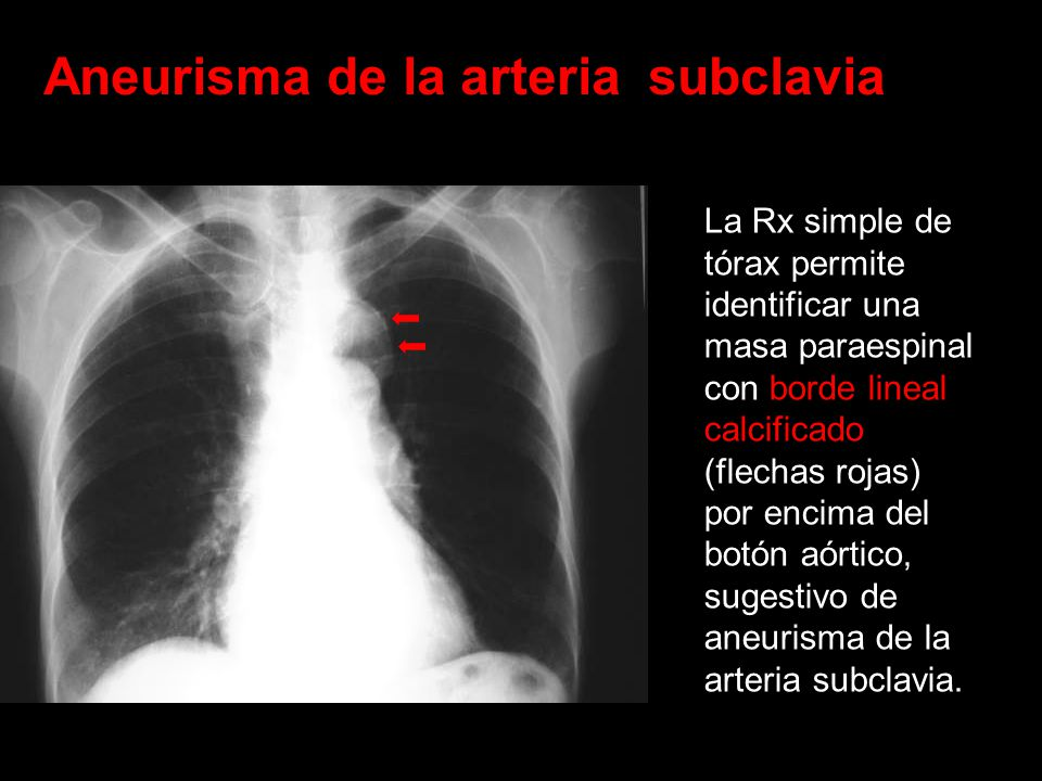 Aneurisma de la arteria subclavia